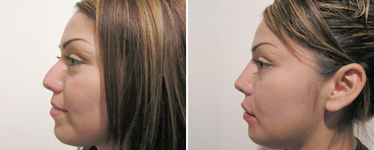 4-things-you-didnt-know-about-rhinoplasty