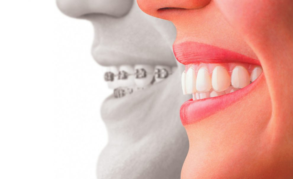 A Basic Guide to Invisalign
